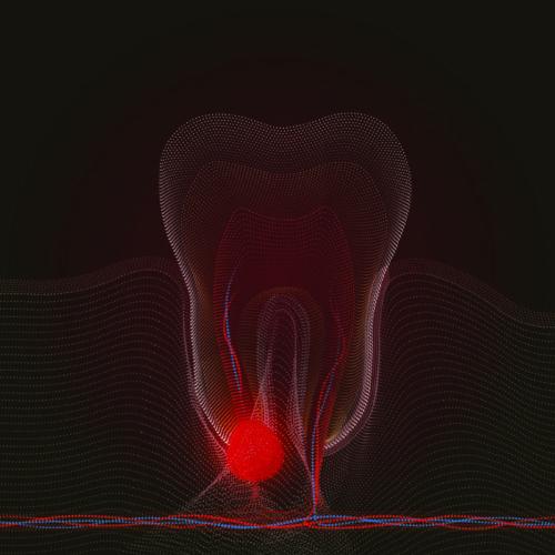 Спасяване на зъбите от изваждане | Здравница зъболандия Варна