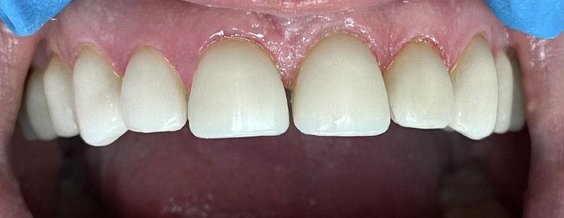 Изграждане на зъби при бруксизъм / скърцане със зъби - Зъболекарски кабинет Здравница Зъболандия Варна