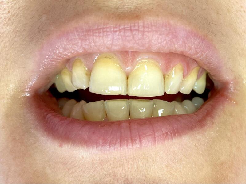 Eрозия на шийката на зъба - Зъболекарски кабинет Варна - Зъболекар Варна