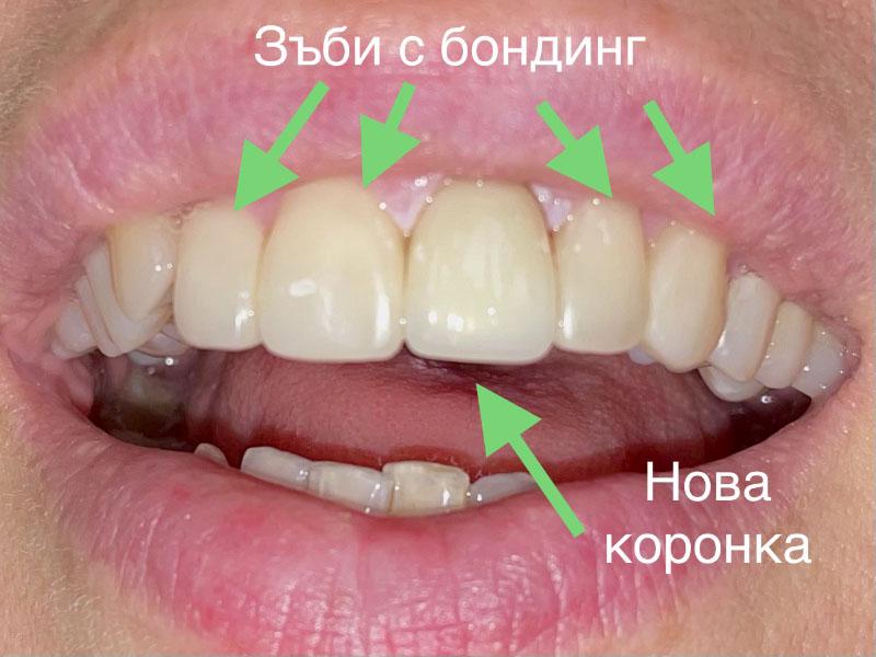 Бондинг - щадящ и достъпен метод за възстановяване и корекции на зъбите